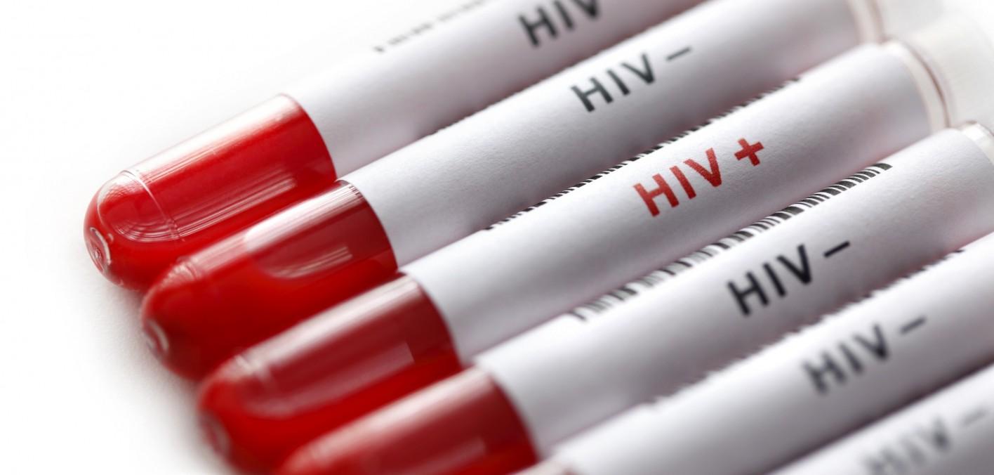 HIV aşısı